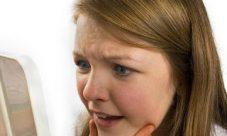 Impactos sociales del acné