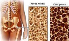 Síntomas del cáncer de huesos