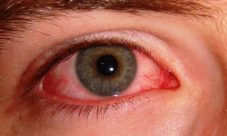 ¿Por qué se ponen los ojos rojos?