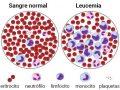 ¿Qué es la leucemia y por qué se produce?