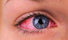 Principales enfermedades de la vista